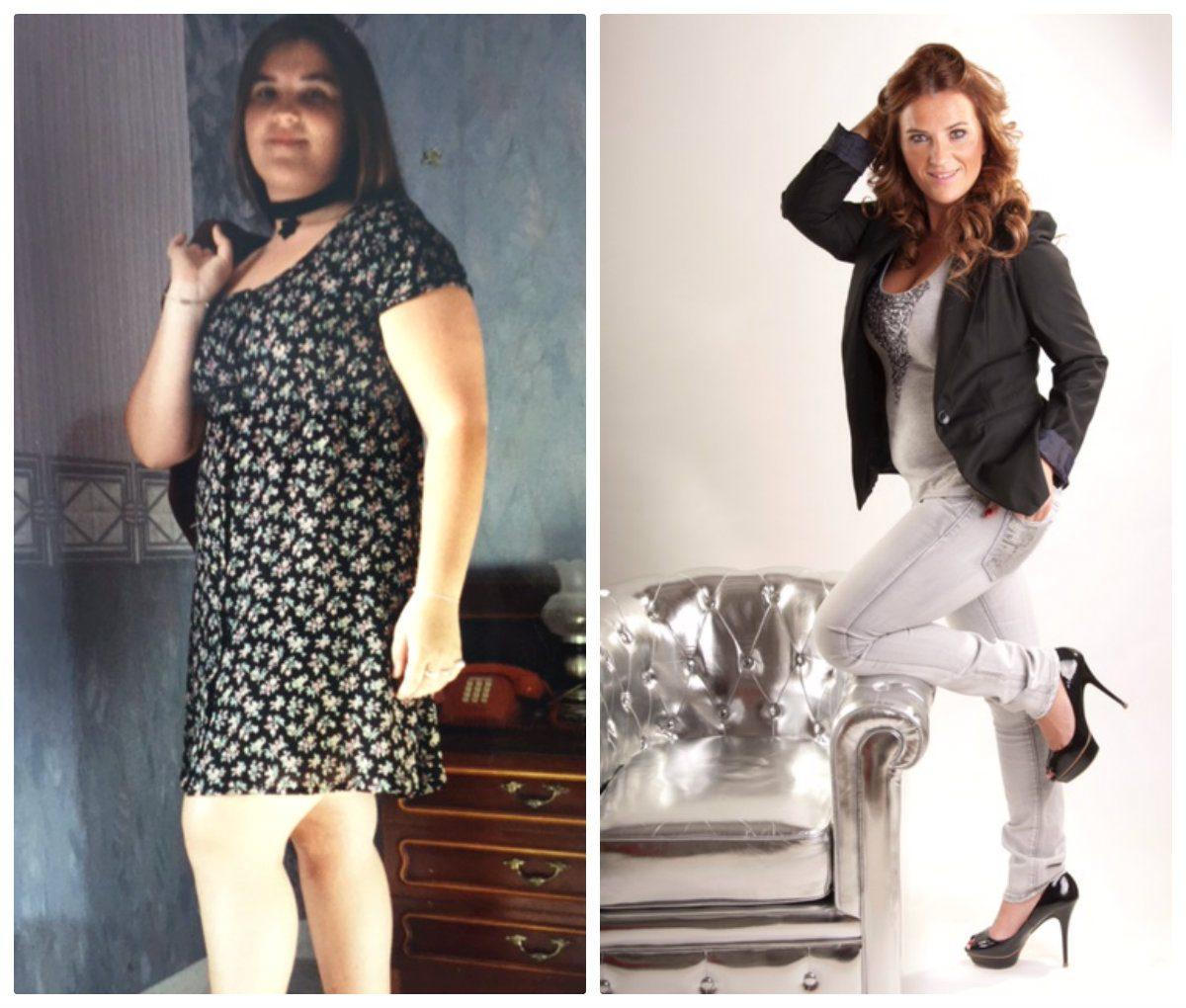 Descubre el caso de Míriam - Cirugía Obesidad Mórbida 793fc9cf517